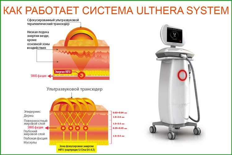 Альтера систем / Ulthera System ультразвуковой SMAS лифтинг