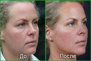 Липофилинг глаз: фото