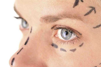 Коррекция области вокруг глаз методом липофилинга