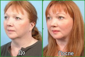Липосакция щек и лица: фото до и после