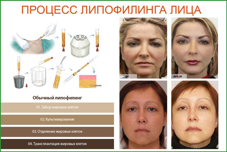 Липофилинг лица: суть процедуры