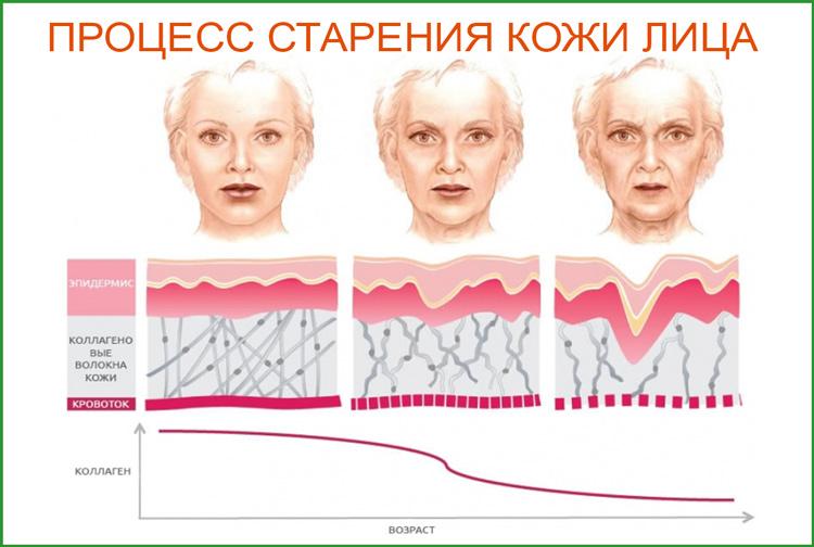 Старение кожи. Причины и признаки