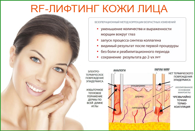 RF-лифтинг кожи лица