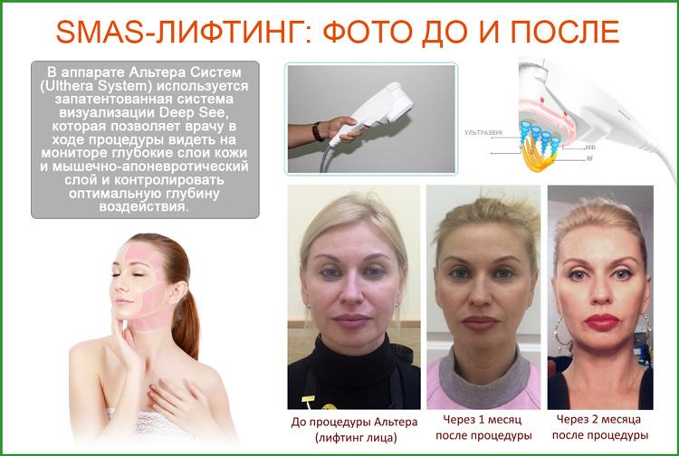 Cмас лифтинг фото до и после операции по подтяжке лица