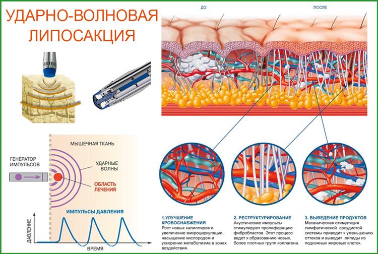 Ударно-Волновая терапия против целлюлита
