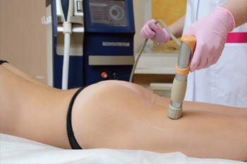 Все нюансы липосакции методом ударно-волновой терапии