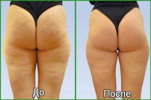 Фото до и после ударно-волновой терапии