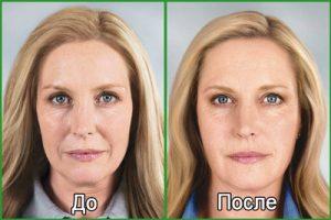 Микротоковая терапия лица: фото