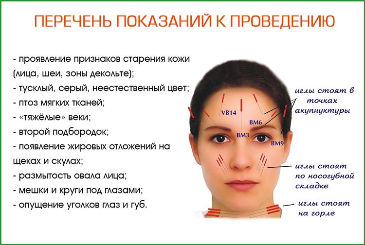 Показания к проведению иглоукалывания лица
