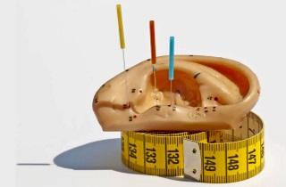 Эффективность иглоукалывания для похудения