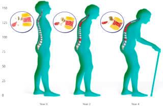 Диета при остеопорозе у женщин