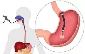 Нужна ли диета перед гастроскопией