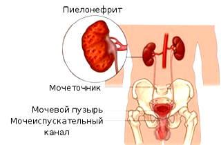 Диета при пиелонефрите почек у женщин. Меню на неделю по дням при обострении, беременности, цистите, что нельзя